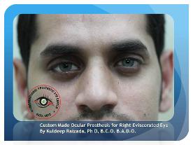 Custom Made Artificial Eye Fitted Over Enucleated Eye Artificial Eye Before & After Results