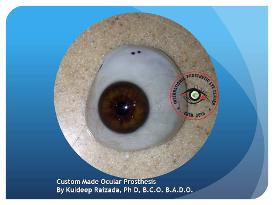Custom Made Artificial Eye India