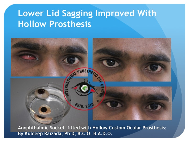 - Hollow or Light weight prosthesis-Kuldeep Raizada