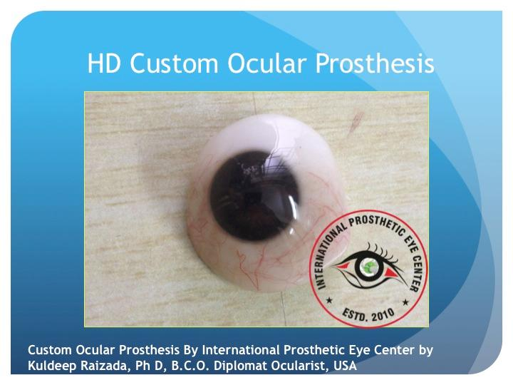 Custom Artificial Eyes India : Kuldeep Raizada, Ph D, BCO