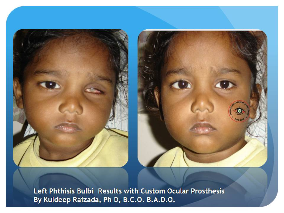 Scleral Shell An Answer For Blind Disfigured Eyes By Dr