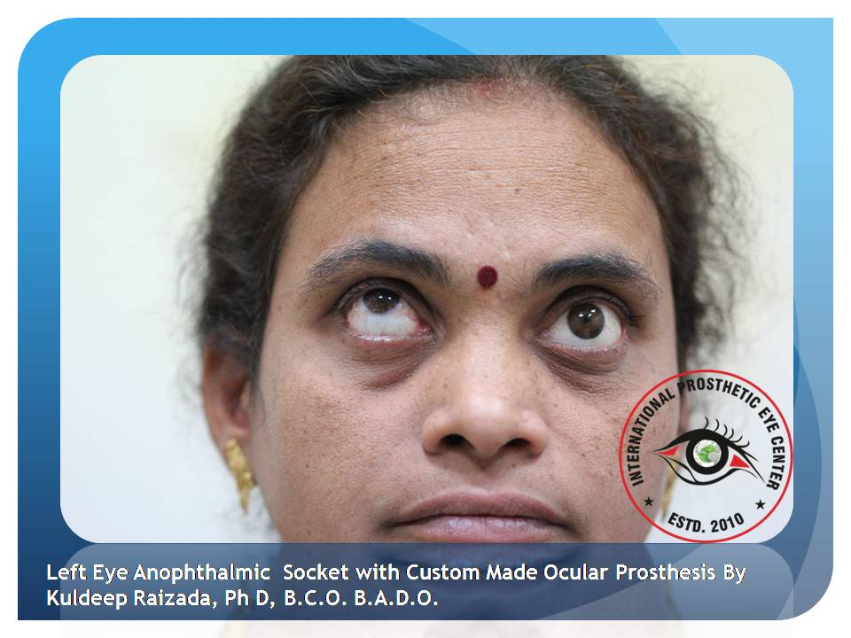 - Movements of the eye Left Eye Anophthalmic  Socket with Custom Made Ocular Prosthesis By Kuldeep Raizada Superior Movement