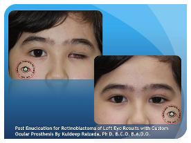 Natural Appearance with Custom Made Artificial Eye Before & After Results