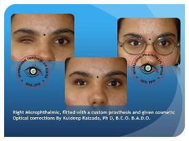 Microphthalmia/anophthalmia Patient fitted with a custom artificial eye