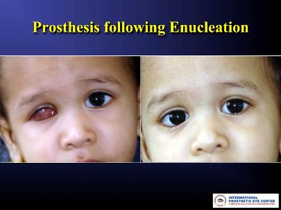 Post Enucleation with right Custom ocular prosthesis