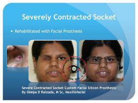 Silicone Facial Prosthesis for a contracted socket