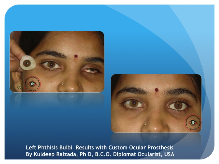 ocular prothesis An ocular defect may affect a patient psychologically an ocular prosthesis is given to uplift the patient psychologically and improve the confidence ocular prosthesis can be custom made or a stock shell to improve the comfort and matching of the prosthesis with that of the adjacent natural eye an.