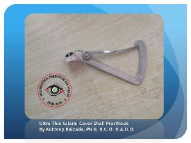 Ultra Thin Scleral Cover Shell Prosthesis